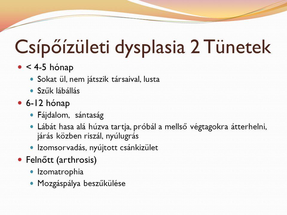 Csípőízületi dysplasia 2 Tünetek