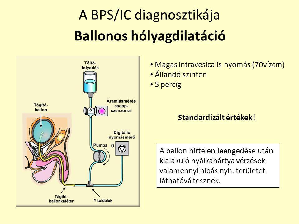 Ballonos hólyagdilatáció Standardizált értékek!