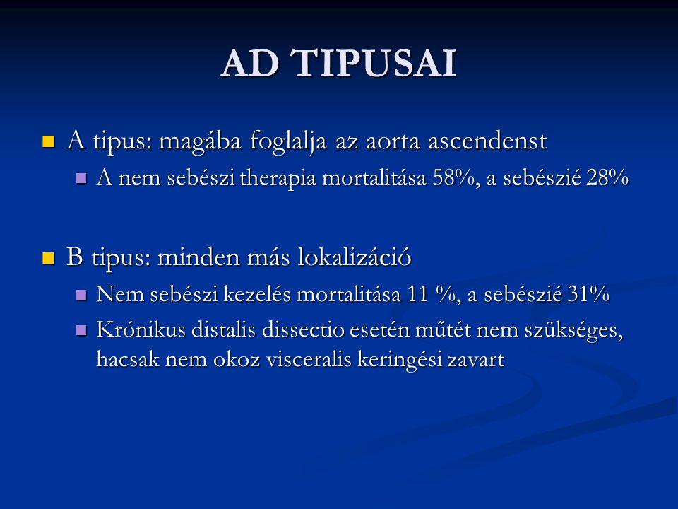 AD TIPUSAI A tipus: magába foglalja az aorta ascendenst