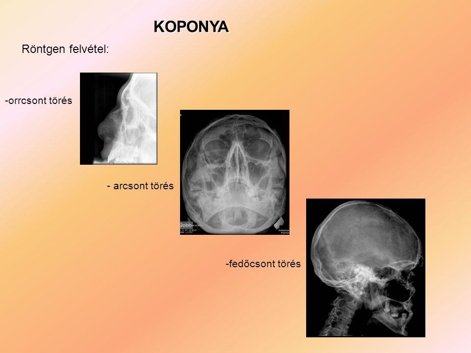 KOPONYA Röntgen felvétel: -orrcsont törés - arcsont törés