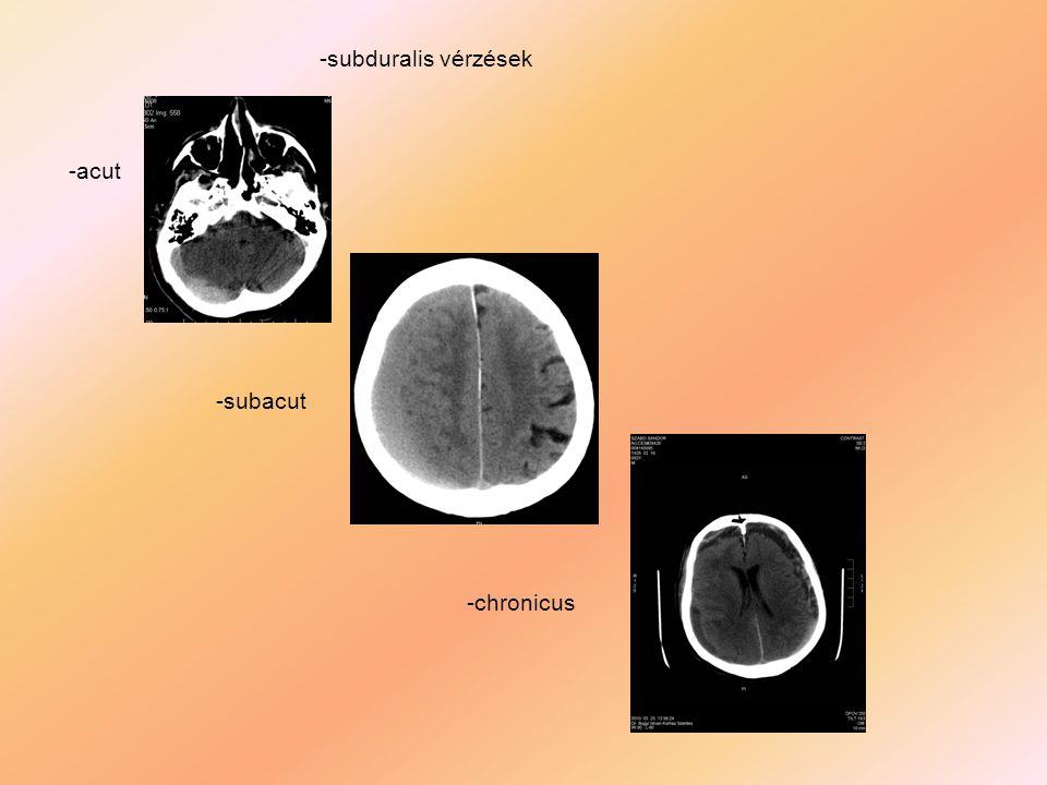 -subduralis vérzések -acut -subacut -chronicus