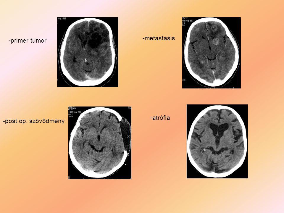 -metastasis -primer tumor -atrófia -post.op. szövődmény