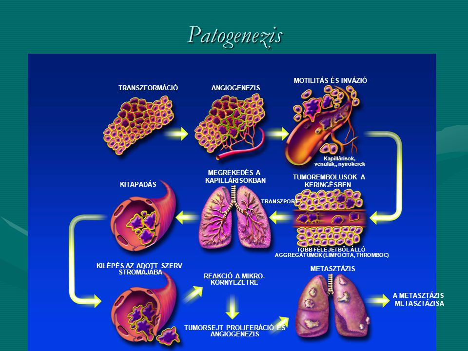 Patogenezis 7. Cancer Biology: Pathogenesis