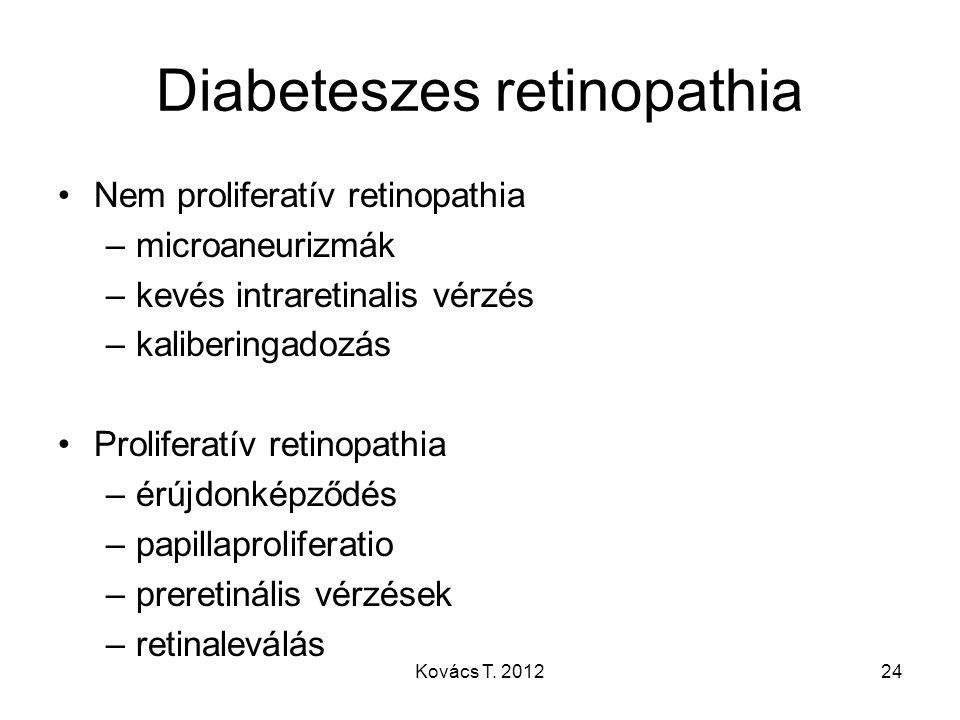 Diabeteszes retinopathia
