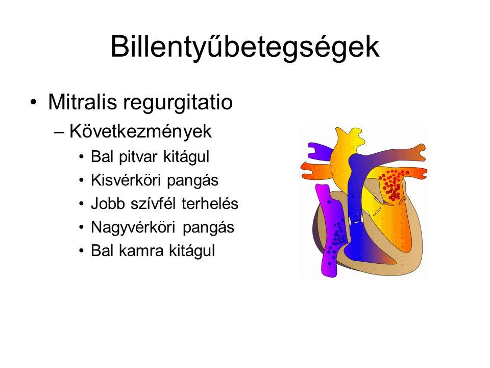 Billentyűbetegségek Mitralis regurgitatio Következmények
