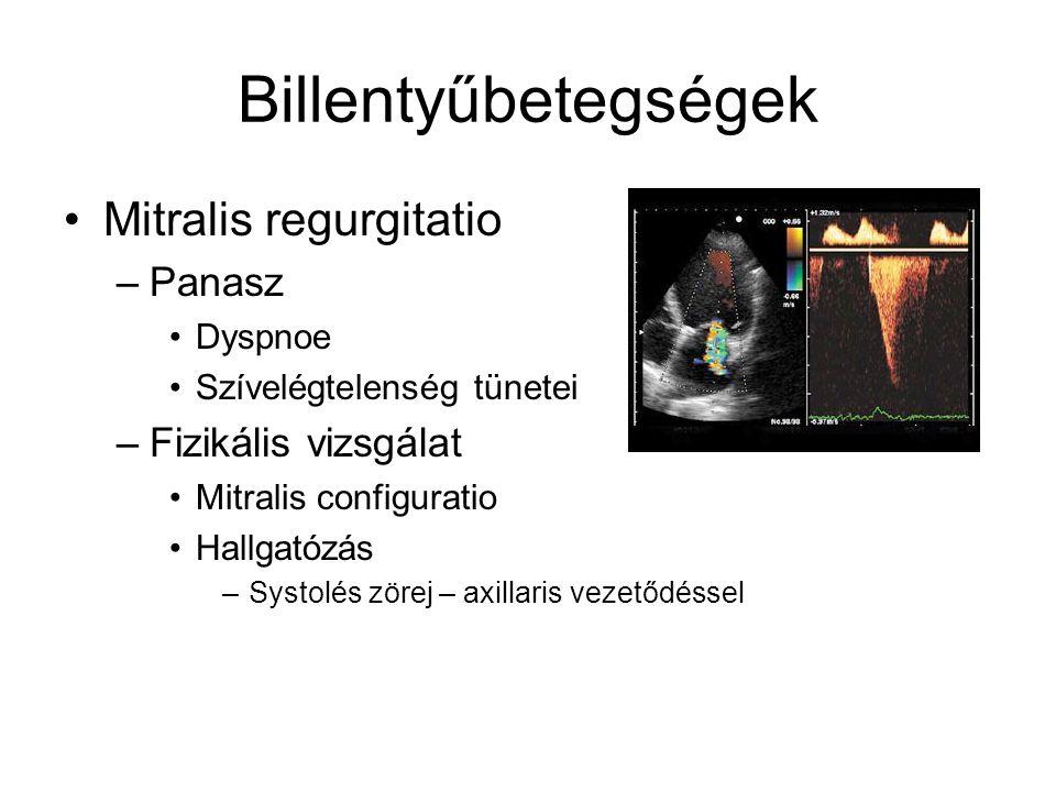 Billentyűbetegségek Mitralis regurgitatio Panasz Fizikális vizsgálat