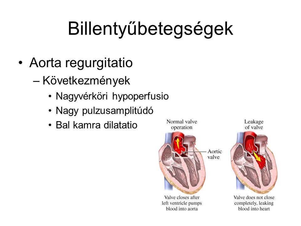 Billentyűbetegségek Aorta regurgitatio Következmények