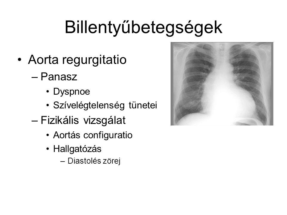 Billentyűbetegségek Aorta regurgitatio Panasz Fizikális vizsgálat