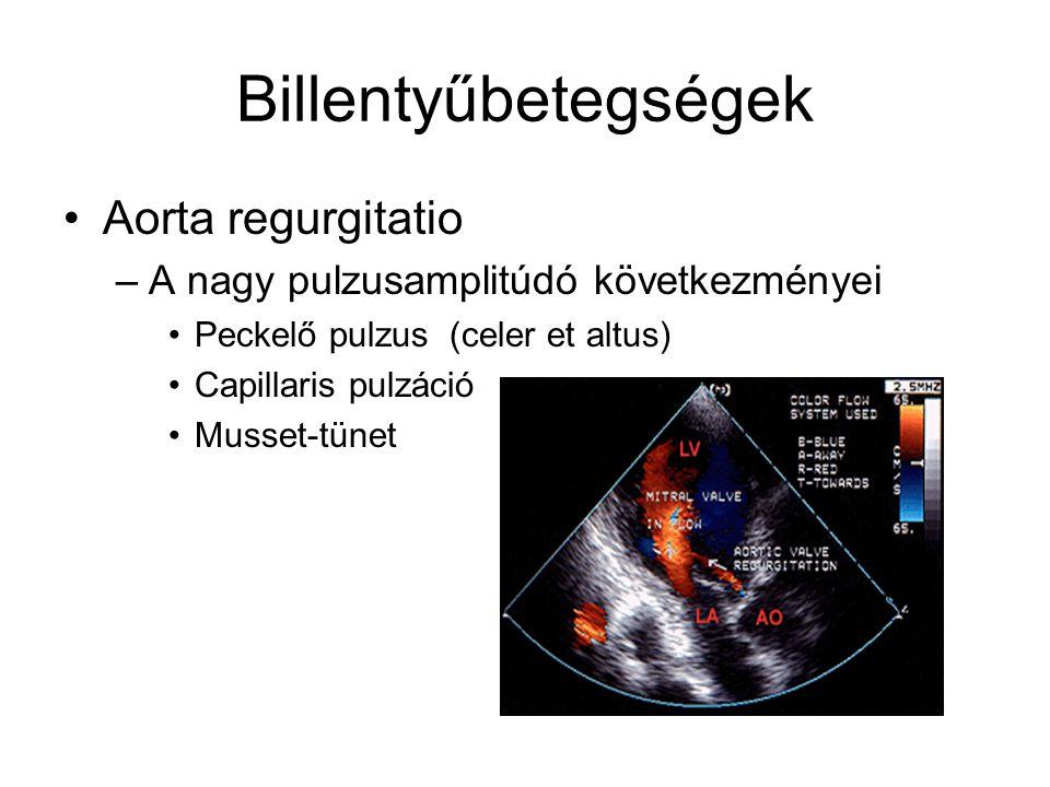 Billentyűbetegségek Aorta regurgitatio