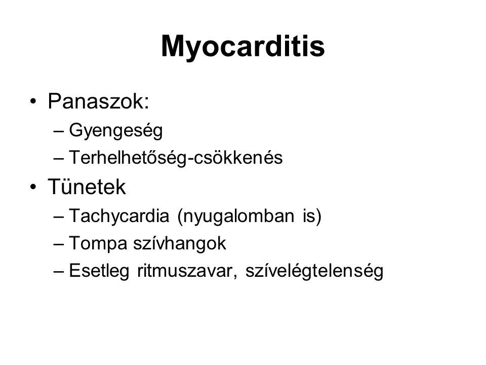 Myocarditis Panaszok: Tünetek Gyengeség Terhelhetőség-csökkenés