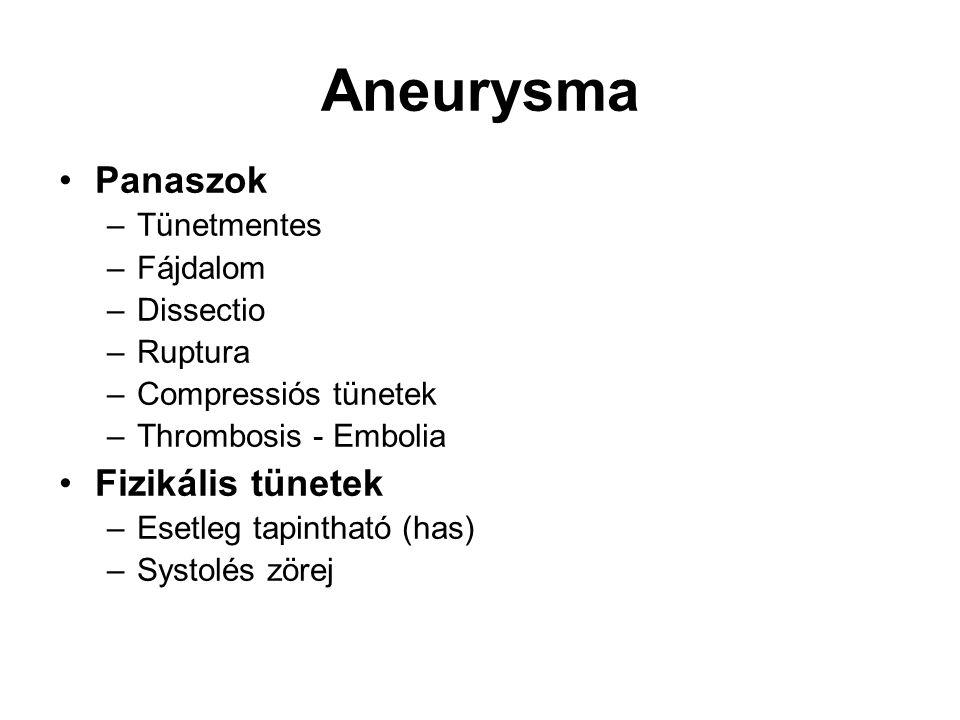 Aneurysma Panaszok Fizikális tünetek Tünetmentes Fájdalom Dissectio