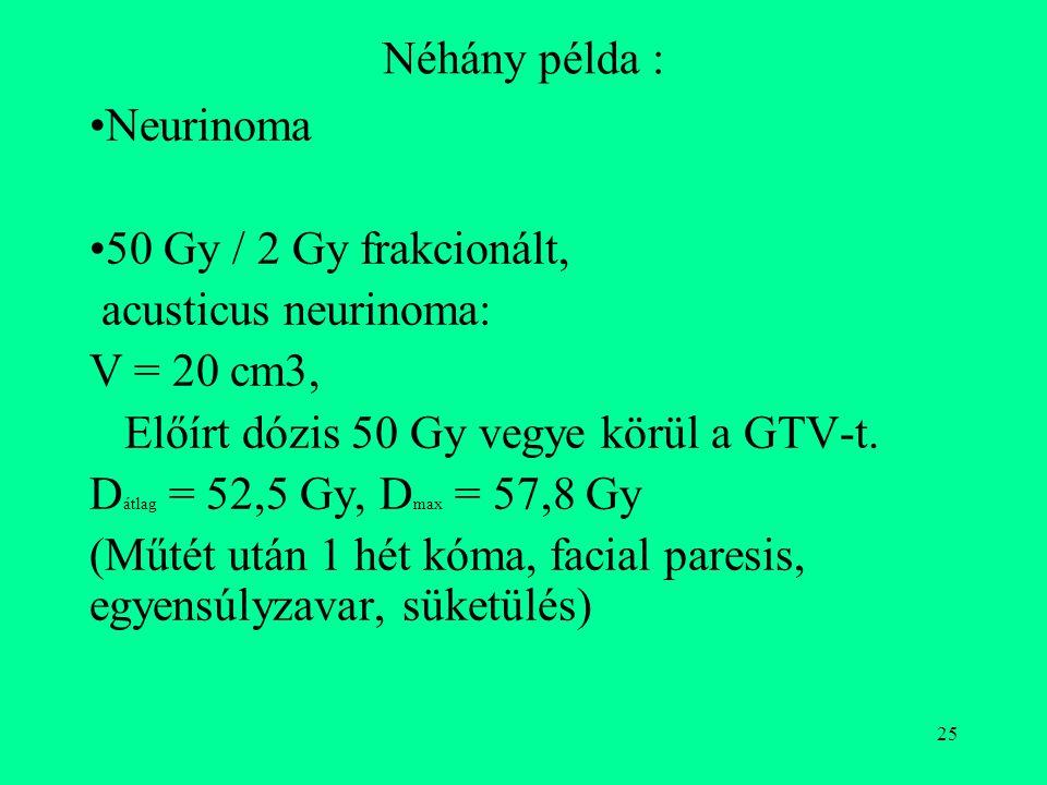 Néhány példa : Neurinoma. 50 Gy / 2 Gy frakcionált, acusticus neurinoma: V = 20 cm3, Előírt dózis 50 Gy vegye körül a GTV-t.