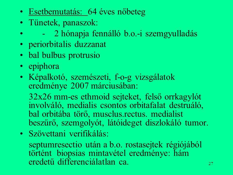 Esetbemutatás: 64 éves nőbeteg