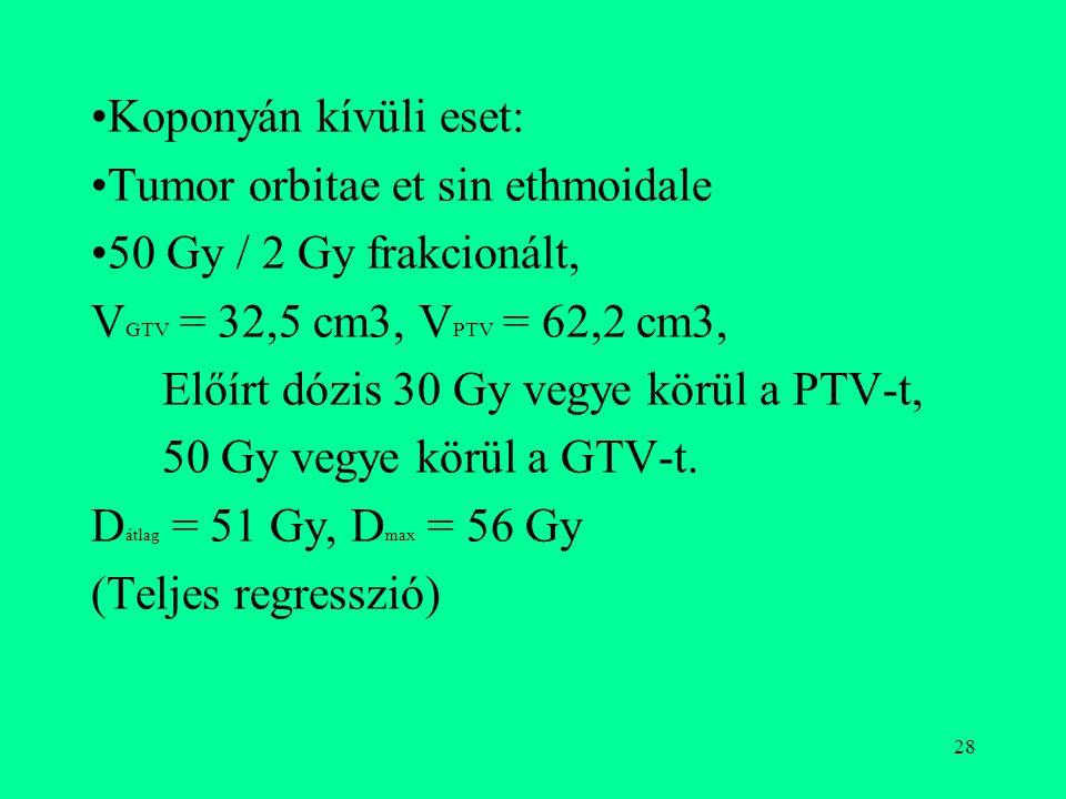 Koponyán kívüli eset: Tumor orbitae et sin ethmoidale. 50 Gy / 2 Gy frakcionált, VGTV = 32,5 cm3, VPTV = 62,2 cm3,