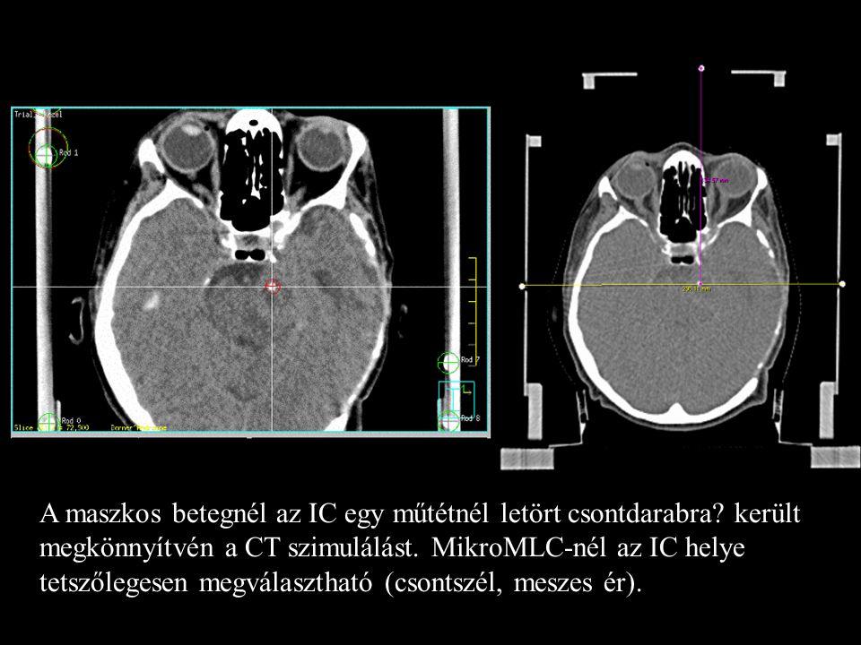 A maszkos betegnél az IC egy műtétnél letört csontdarabra