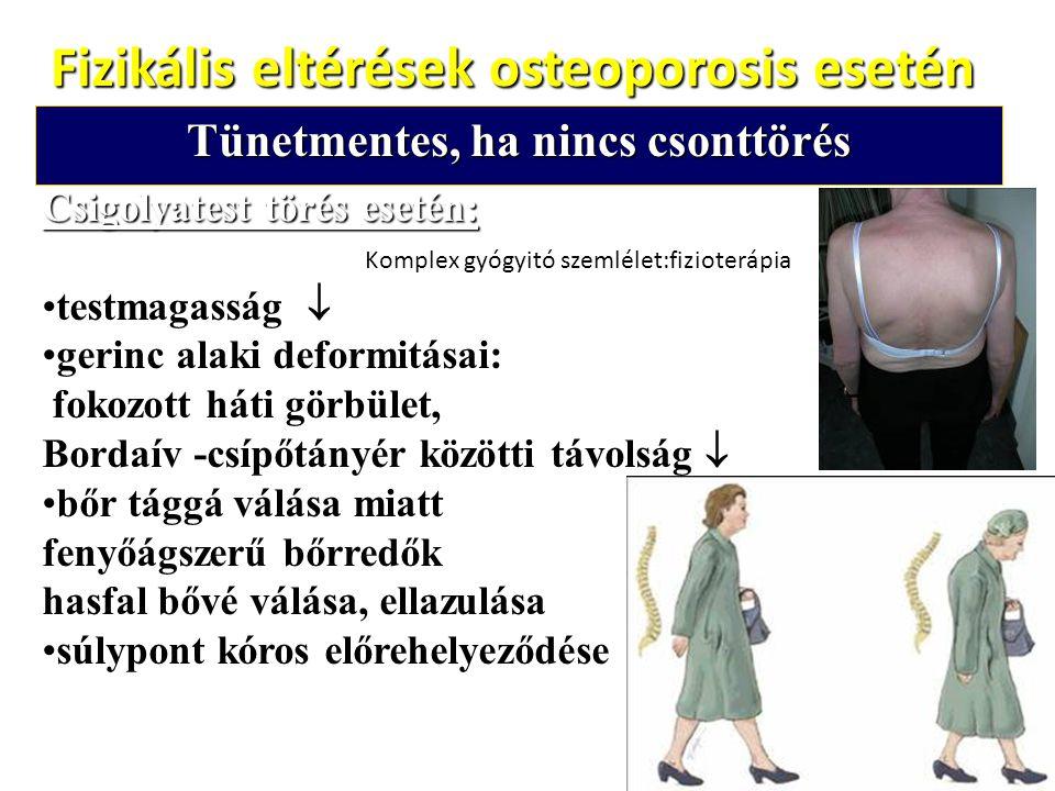 Fizikális eltérések osteoporosis esetén