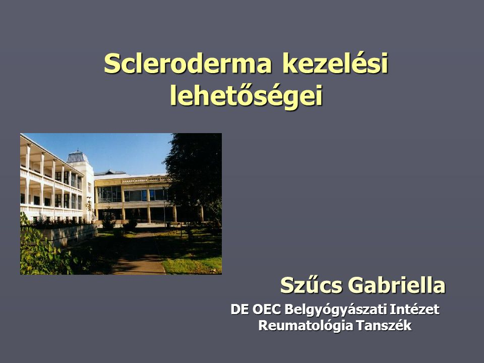 Scleroderma kezelési lehetőségei