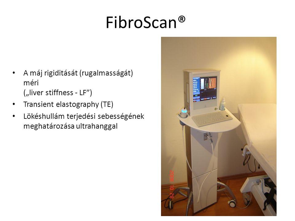 """FibroScan® A máj rigiditását (rugalmasságát) méri (""""liver stiffness - LF ) Transient elastography (TE)"""