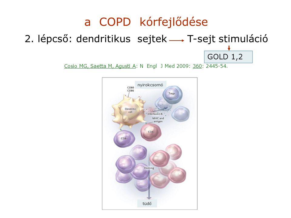 a COPD kórfejlődése 2. lépcső: dendritikus sejtek T-sejt stimuláció