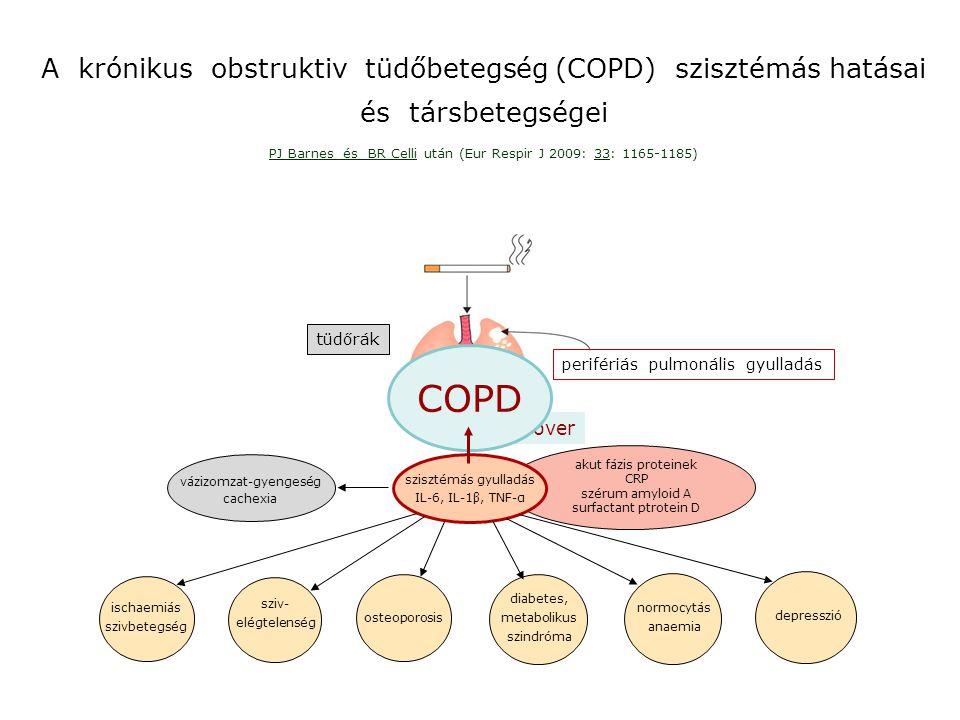 COPD A krónikus obstruktiv tüdőbetegség (COPD) szisztémás hatásai