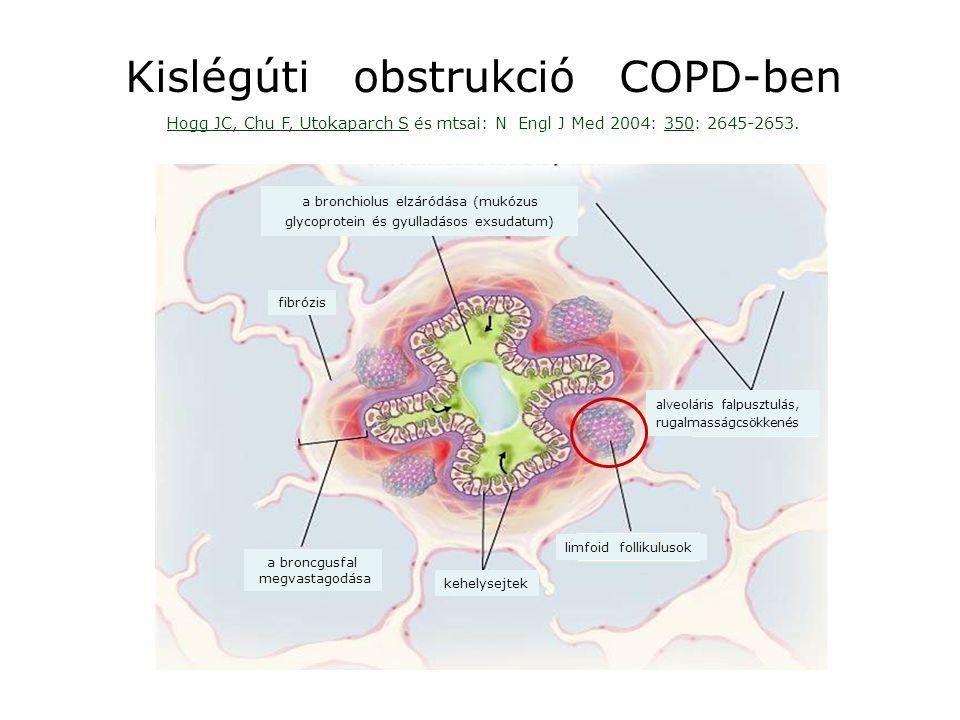 Kislégúti obstrukció COPD-ben