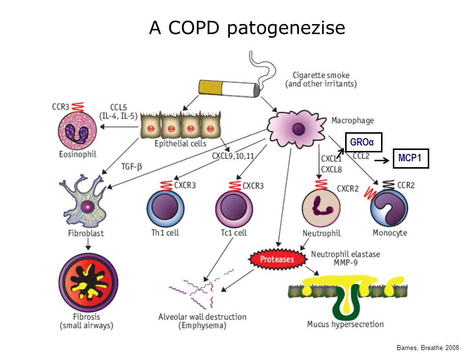 A COPD patogenezise GROα MCP1 Barnes, Breathe 2008