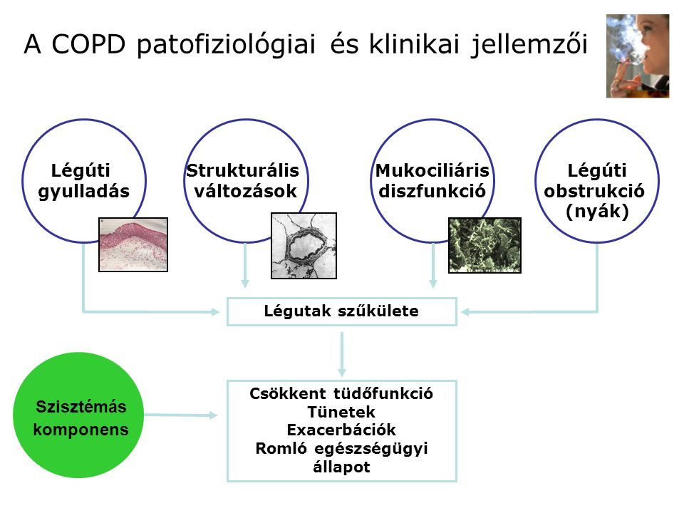 A COPD patofiziológiai és klinikai jellemzői