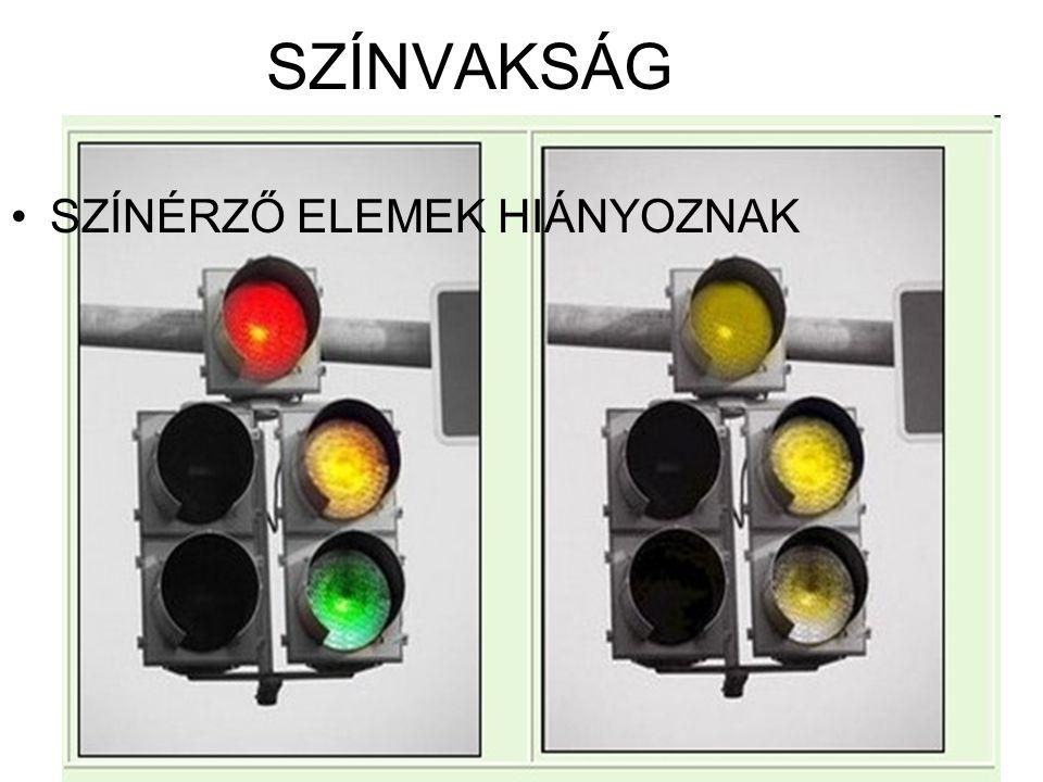 SZÍNVAKSÁG SZÍNÉRZŐ ELEMEK HIÁNYOZNAK