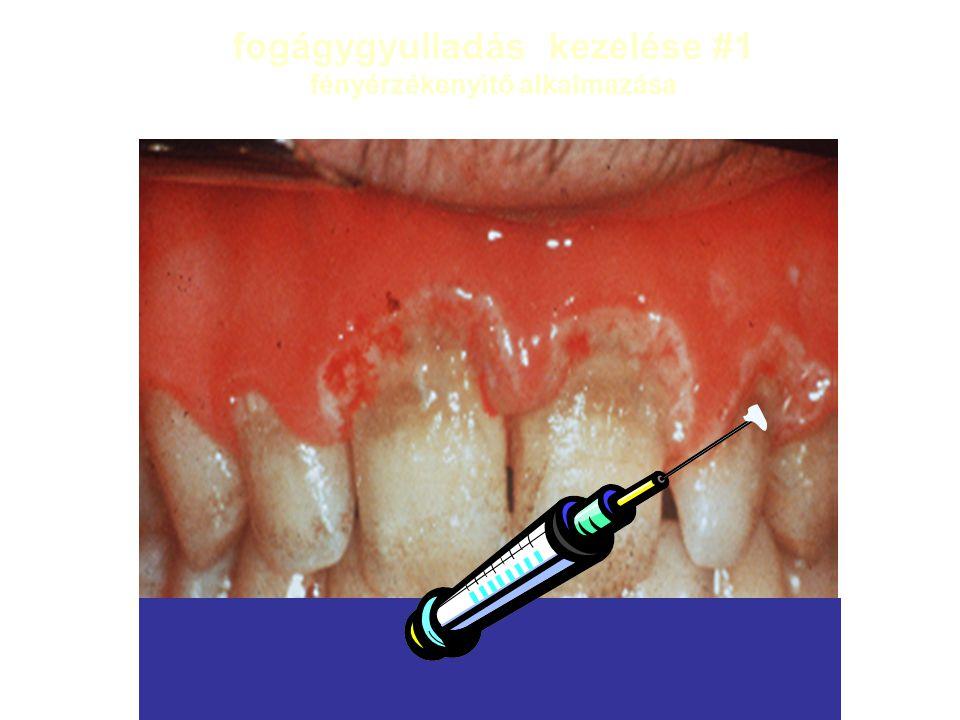 fogágygyulladás kezelése #1 fényérzékenyìtő alkalmazása