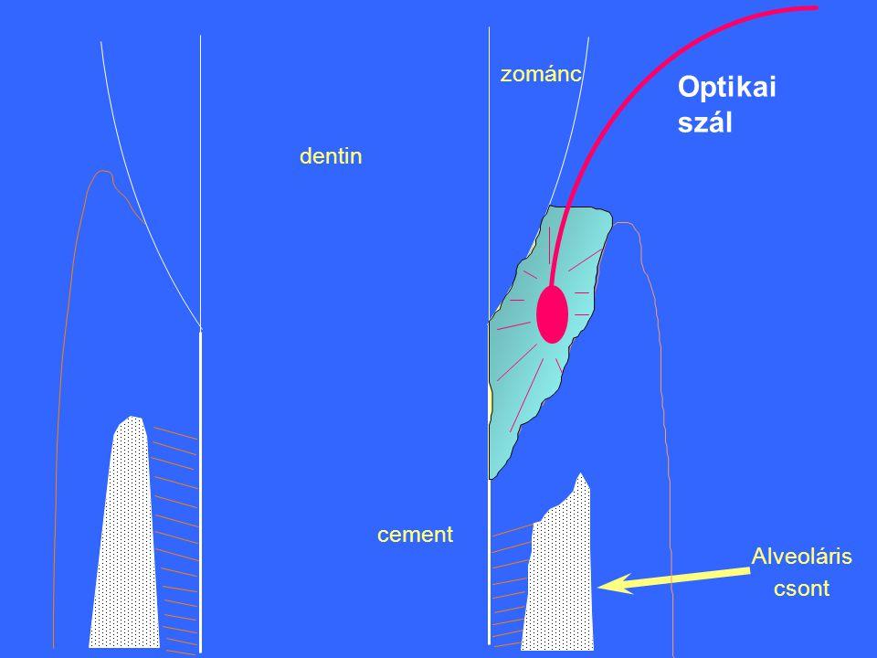 zománc Optikai szál dentin cement Alveoláris csont