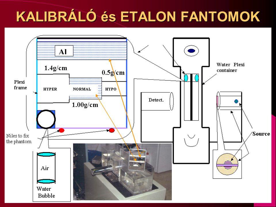 KALIBRÁLÓ és ETALON FANTOMOK