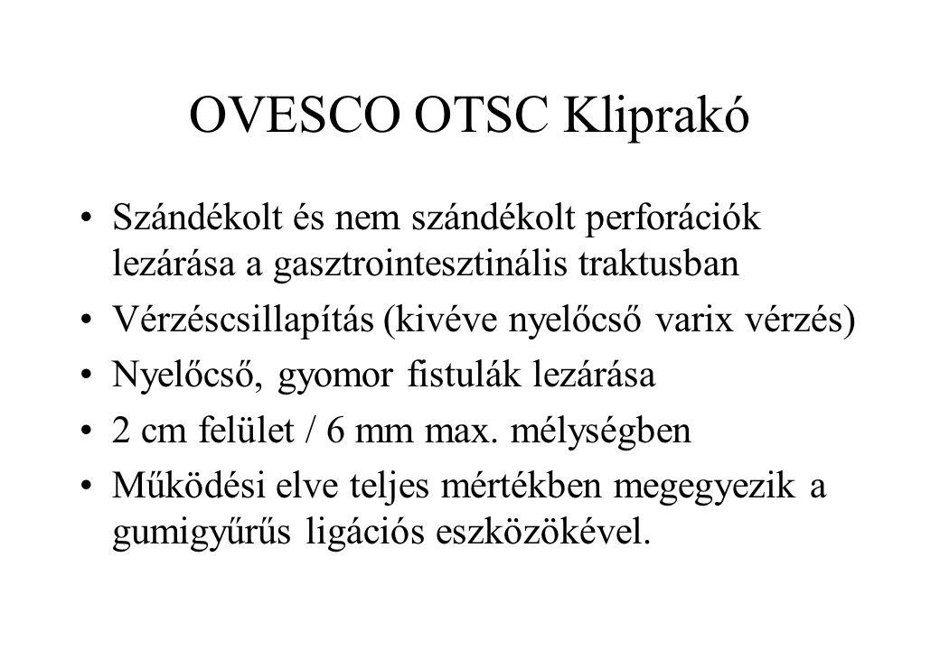 OVESCO OTSC Kliprakó Szándékolt és nem szándékolt perforációk lezárása a gasztrointesztinális traktusban.