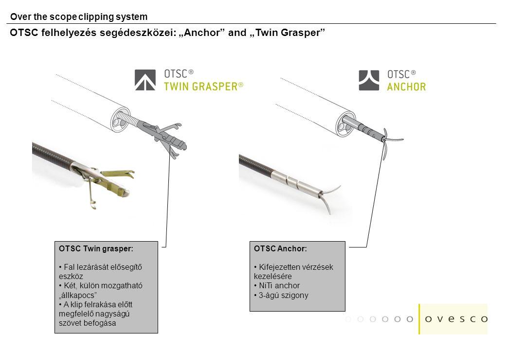 """OTSC felhelyezés segédeszközei: """"Anchor and """"Twin Grasper"""