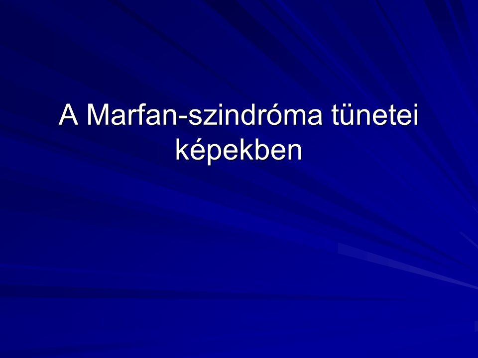 A Marfan-szindróma tünetei képekben