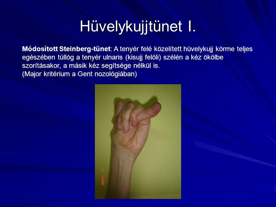 Hüvelykujjtünet I.