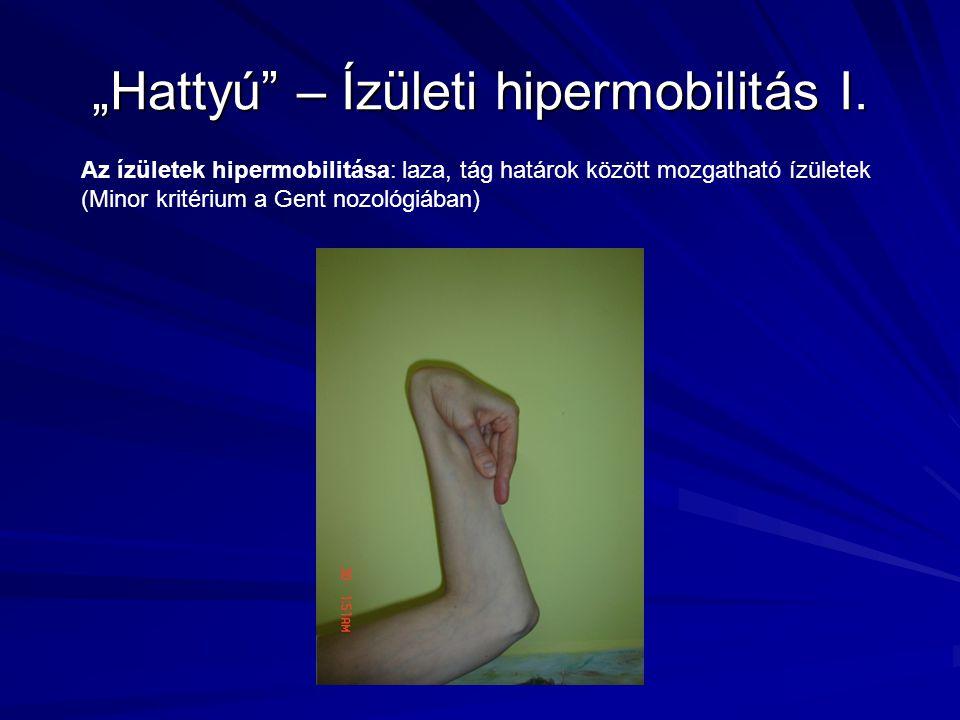 """""""Hattyú – Ízületi hipermobilitás I."""
