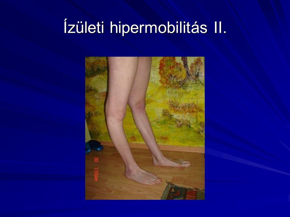 Ízületi hipermobilitás II.