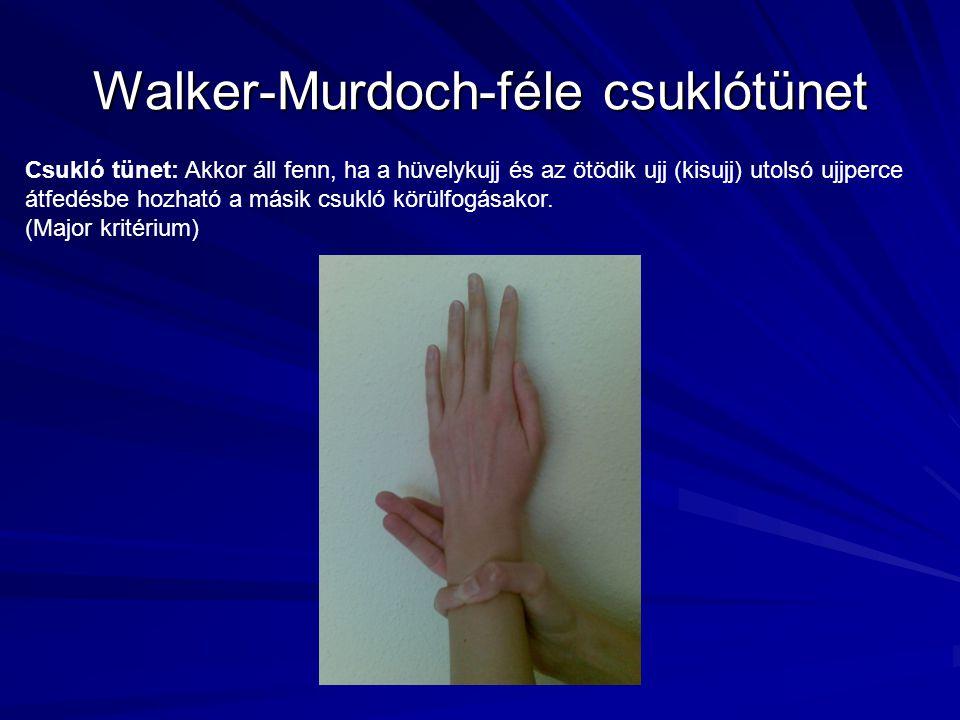 Walker-Murdoch-féle csuklótünet