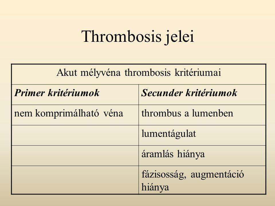 Akut mélyvéna thrombosis kritériumai