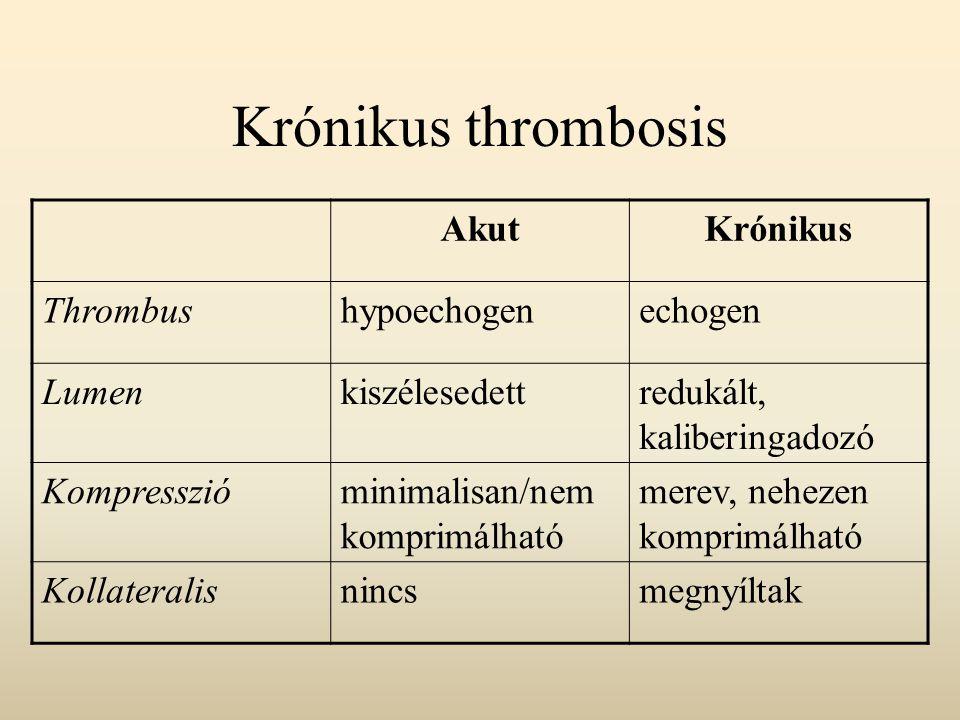 Krónikus thrombosis Akut Krónikus Thrombus hypoechogen echogen Lumen