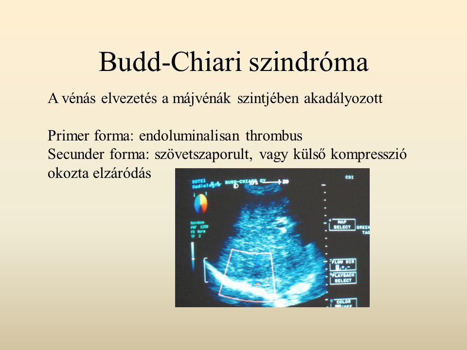 Budd-Chiari szindróma
