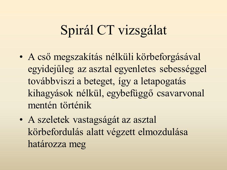 Spirál CT vizsgálat