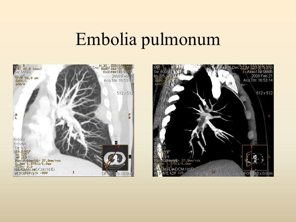 Embolia pulmonum