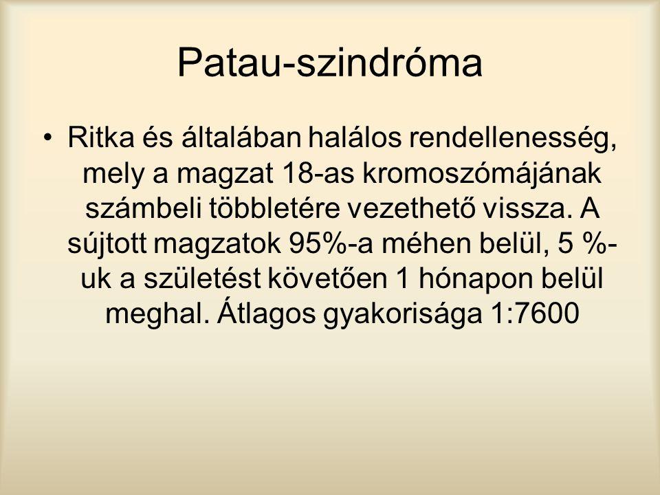 Patau-szindróma