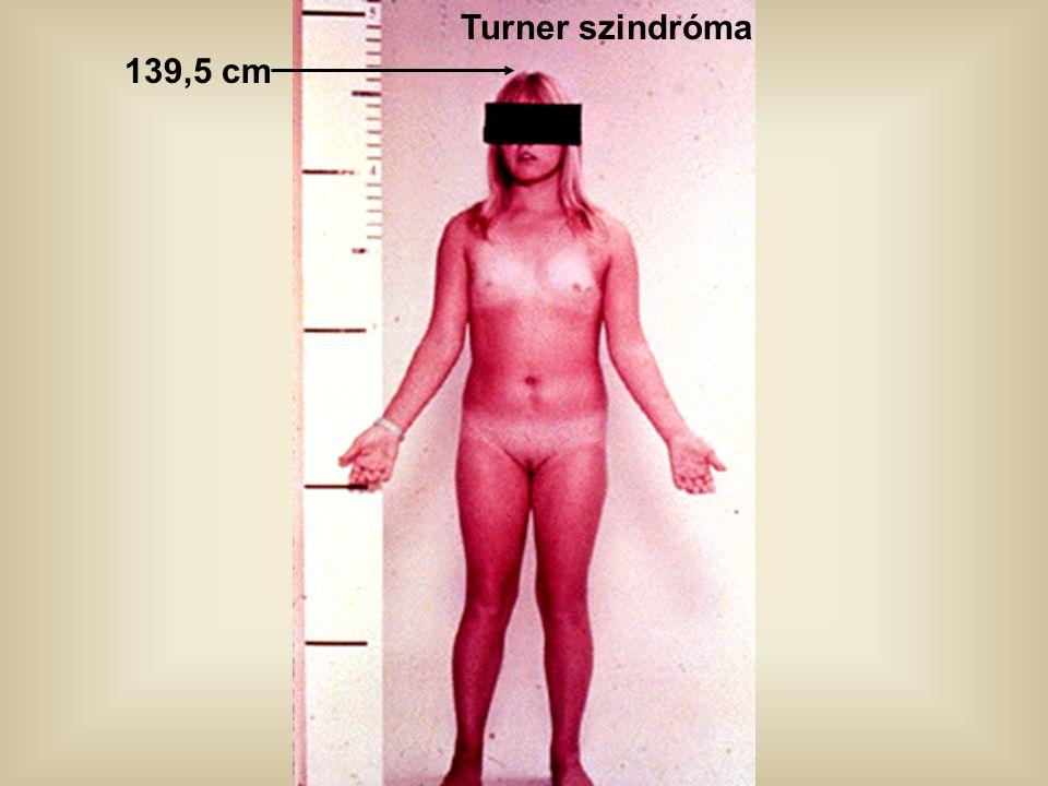 Turner szindróma 139,5 cm