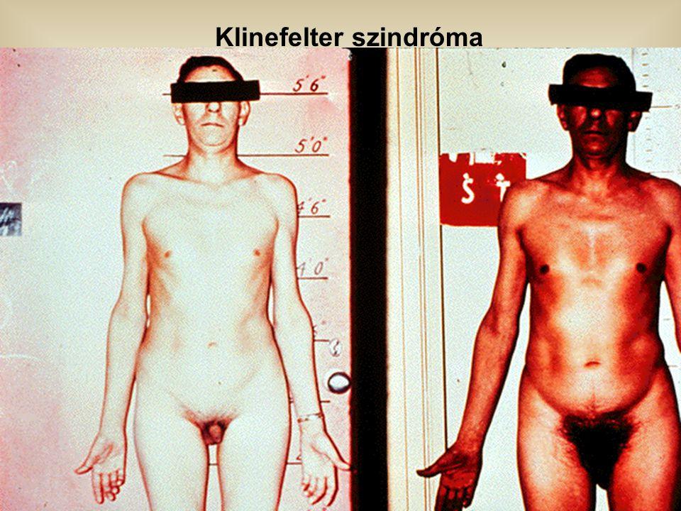 Klinefelter szindróma
