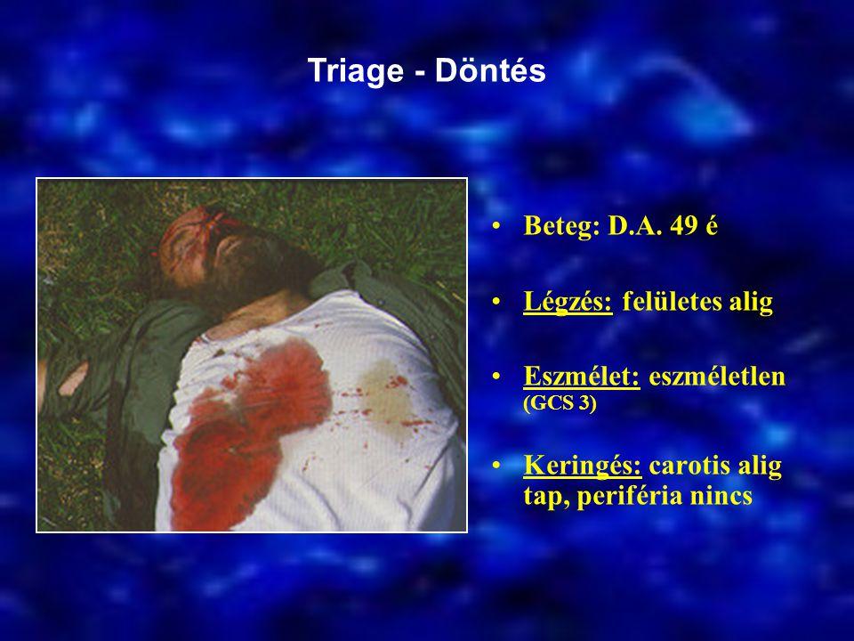Triage - Döntés Beteg: D.A. 49 é Légzés: felületes alig