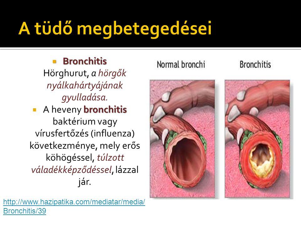 Bronchitis Hörghurut, a hörgők nyálkahártyájának gyulladása.