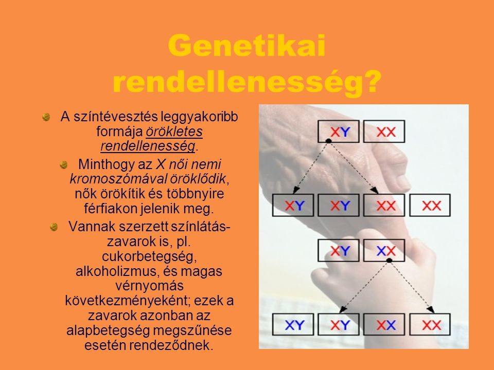 Genetikai rendellenesség