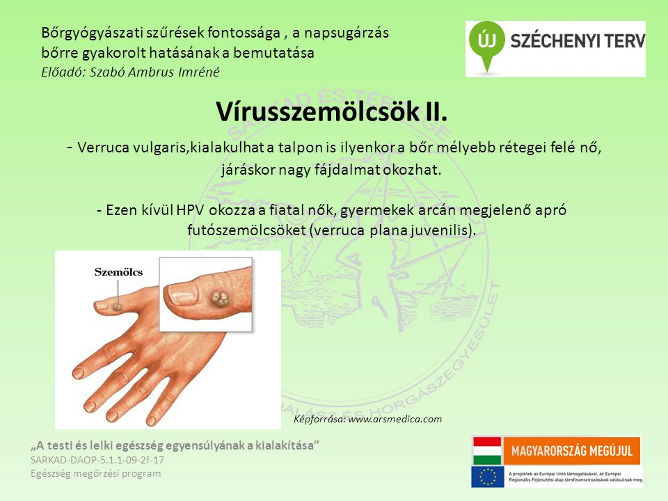 Bőrgyógyászati szűrések fontossága , a napsugárzás bőrre gyakorolt hatásának a bemutatása